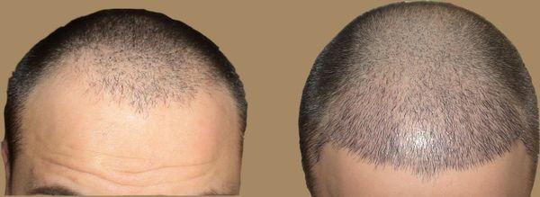 Які ціни на пересадку волосся