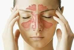 Краплі в ніс при гаймориті з антибіотиком, антигістамінні, для промивання