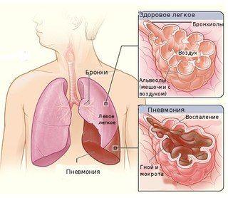 Кашель і хрипи в горлі і легких при диханні у дітей і дорослих мокрота