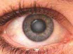Катаракта: симптоми, лікування, причини, операції