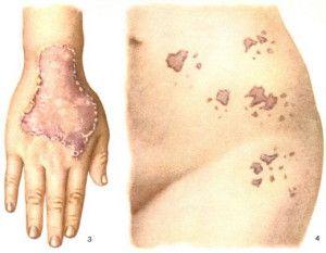 Кетароз шкіри, лікування і причини появи хвороби