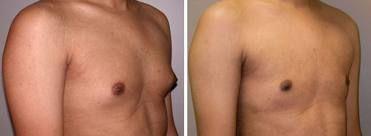 гінекомастія фото до і після