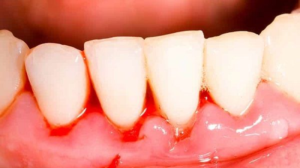 Кровотеча ясен стоматологічні причини