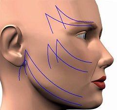 Кругова підтяжка обличчя
