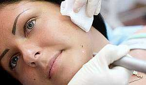 Лазерне видалення бородавок: лазером безболісно і швидко