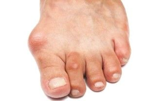 Артроз великого пальця ноги