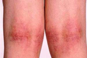 Лікування атопічного дерматиту різними методами