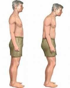 Лікування виразкової хвороби шлунку, симптоми у жінок і чоловіків, причини захворювання