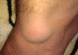 Лікування гігроми колінного суглоба