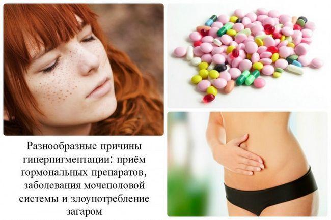 Лікування хлоазми традиційними і народними методами