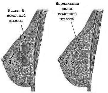 Лікування кісти молочної залози
