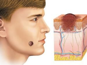 Лікування пігментного невуса або як запобігти утворенню злоякісної пухлини?