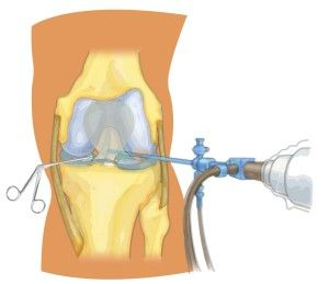 Лікування пошкодження меніска колінного суглоба