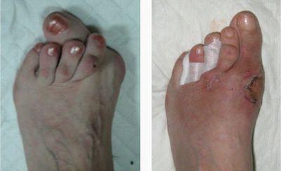 Лікування шишок на ногах зв`язка