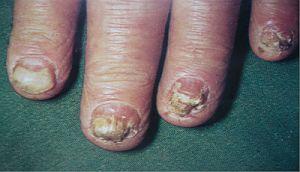 Лікування стригучого позбавляючи у людини - фото, симптоми, ознаки