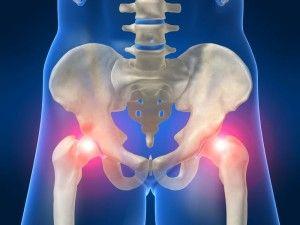 Лікування трохантеріта тазостегнового суглоба