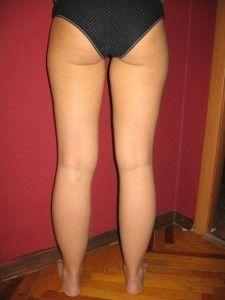 Лікуємо тромбофлебіт нижніх кінцівок
