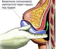 Мамопластика