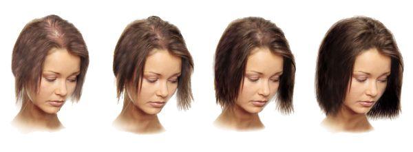 Мезотерапія голови для росту волосся