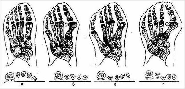 Чи можна позбутися від кісточок на великих пальцях ніг?