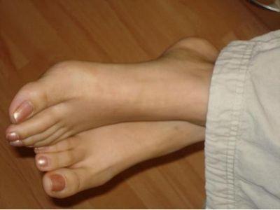 Народні засоби від пітливості ніг тріщина