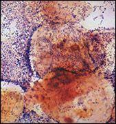 Порушення мікрофлори піхви