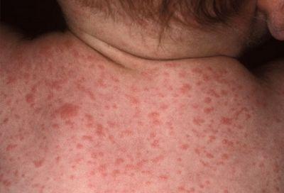 & Nbsp- цитомегаловірус: лікувати або не лікувати?