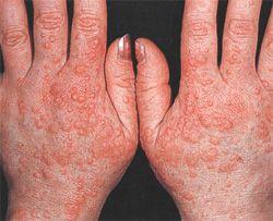 Нейродерміт на руках - причини появи, ознаки і лікування захворювання