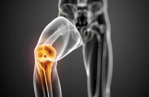Нестабільність в області колінного суглоба