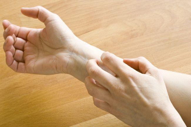 Про яке захворювання може свідчити поява пухирів після душа