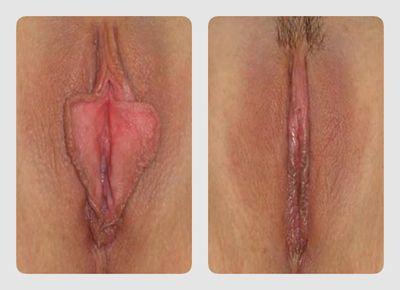 Операція лабіопластика (зменшення статевих губ)