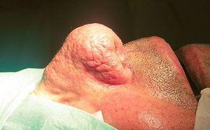 Особливості, методи діагностування та лікування рінофіми
