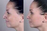 Особливості реабілітації після ринопластики носа