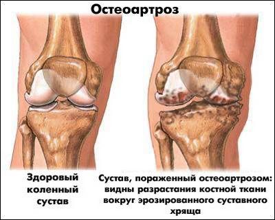 Остеоартрит (остеоартроз) колінного суглоба. стілець