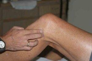 Остеоартроз колінного суглоба 1 ступеня