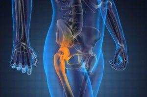 Чому виникає біль в тазостегновому суглобі і як з нею боротися?