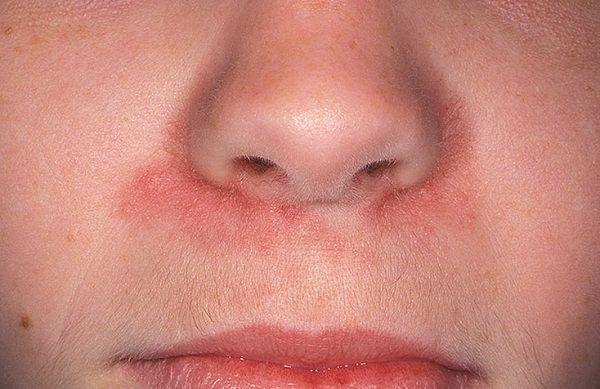 Періоральний дерматит фото