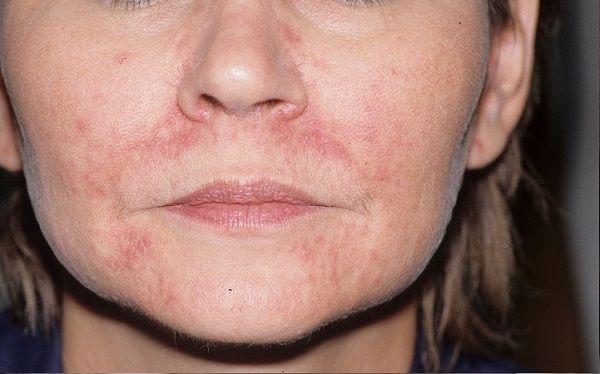 Фото периорального дерматиту