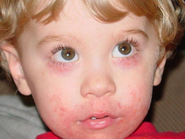 Періоральний дерматит у дітей