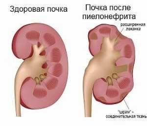 Пієлонефрит: симптоми, лікування, причини