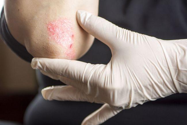Чому шкіра на ліктях суха і шорстка