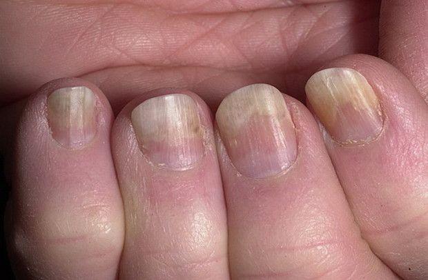 Чому нігті на пальцях рук відходять від нігтьового ложа