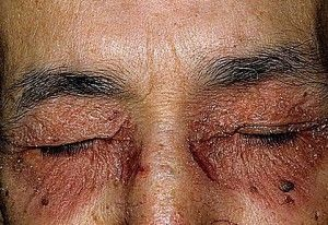 Чому виникає нейродерміт на обличчі? Симптоми і особливості терапії