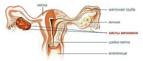Полікістоз яєчників: симптоми, лікування, причини, чи можна завагітніти