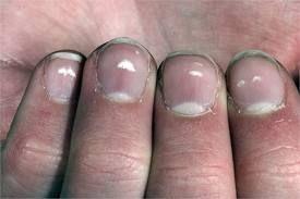 Причини білих плям на нігтях рук, способи позбавлення від них