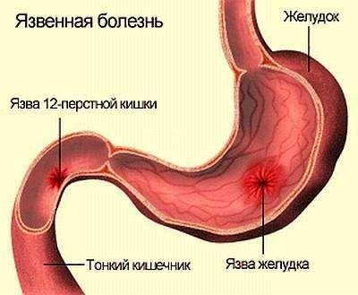Причини і симптоми виразки дванадцятипалої кишки, лікування, дієта, народні засоби
