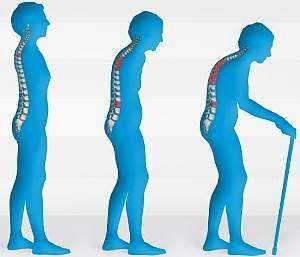 Причини і симптоми остеопорозу, перші ознаки