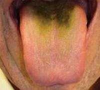 Жовто-зелений наліт