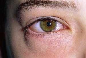 Причини мішків, набряків під очима, як позбутися від набряків