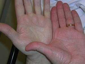 Причини низького гемоглобіну у дітей, дорослих, людей похилого віку